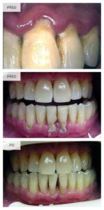 Chrup před odstraněním zubního kamene a po zákroku.