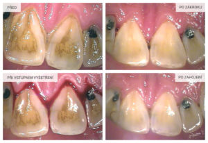 Chrup v horní čelisti před provedením dentální hygieny a po zákroku.
