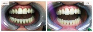 Chrup před provedením dentální hygieny a po zásahu.